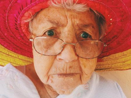 老年性ほうれい線 改善