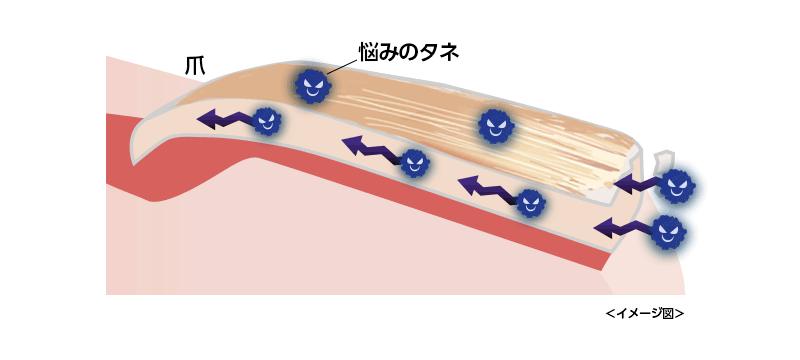 爪水虫 メカニズム