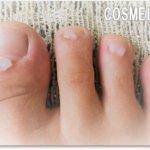 爪のでこぼこ、縦線、濁り、厚みは爪水虫?|クリアネイルショット