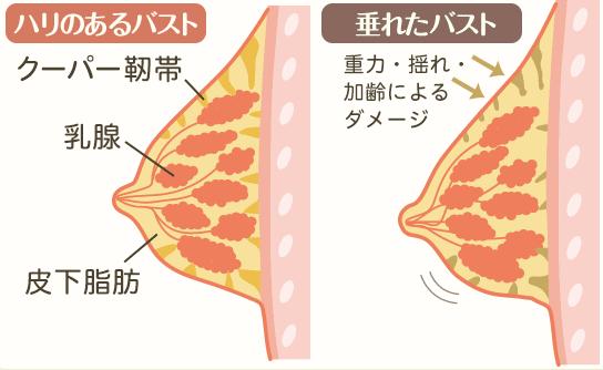 ナイトブラ クーパー靭帯